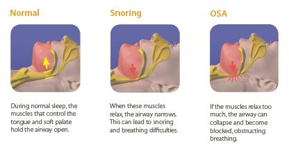Types of Sleep Apnea